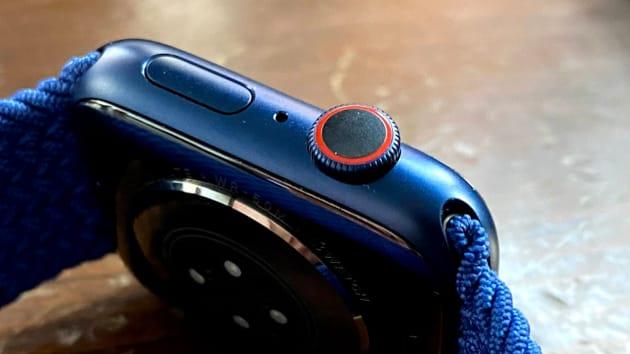 Có nên mua Apple Watch Series 6 vì cảm biến nồng độ oxy trong máu? - Ảnh 2.