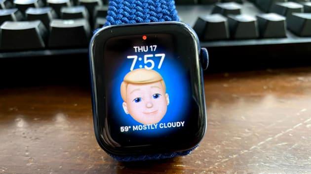 Có nên mua Apple Watch Series 6 vì cảm biến nồng độ oxy trong máu? - Ảnh 1.