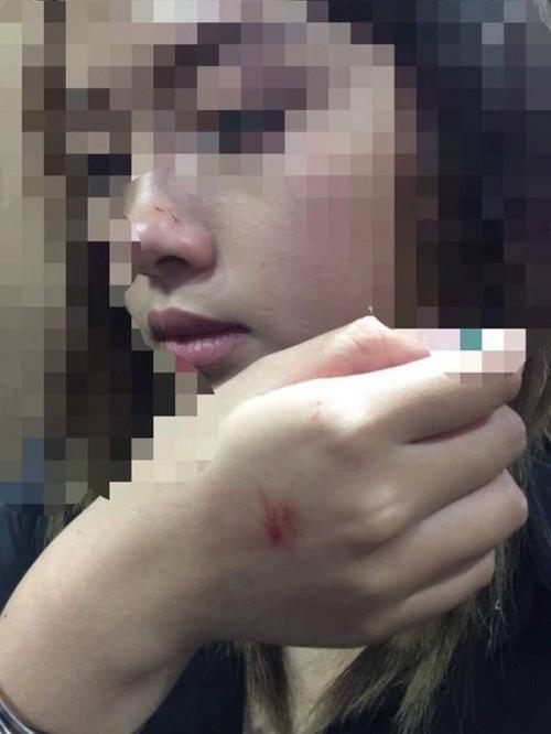 Nữ sinh bị cưỡng hôn trong thang máy muốn được xin lỗi công khai - Ảnh 1.