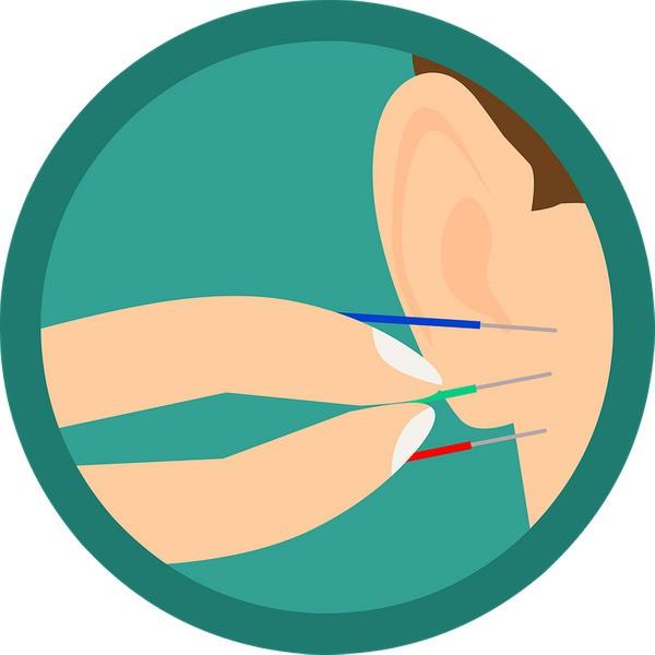 Châm cứu: Phương pháp giảm cân hiệu quả không cần thuốc, không cần tập luyện - Ảnh 3.