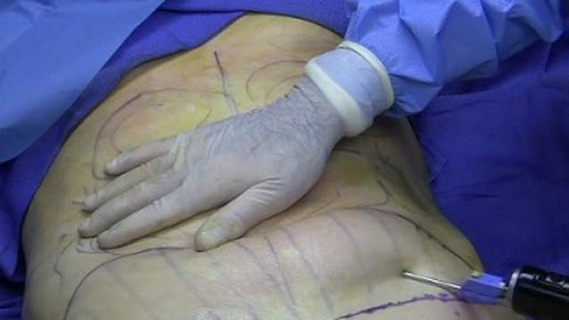 Cô gái tử vong khi hút mỡ bụng: Bệnh viện Bạch Mai thông tin bất ngờ - Ảnh 1.