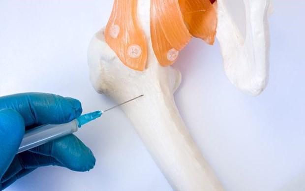 Nga thử nghiệm cấy ghép xương bằng kĩ thuật tế bào thế hệ mới - Ảnh 1.