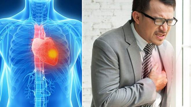 Những dấu hiệu cảnh báo một cơn đau tim sắp xảy ra - Ảnh 1.