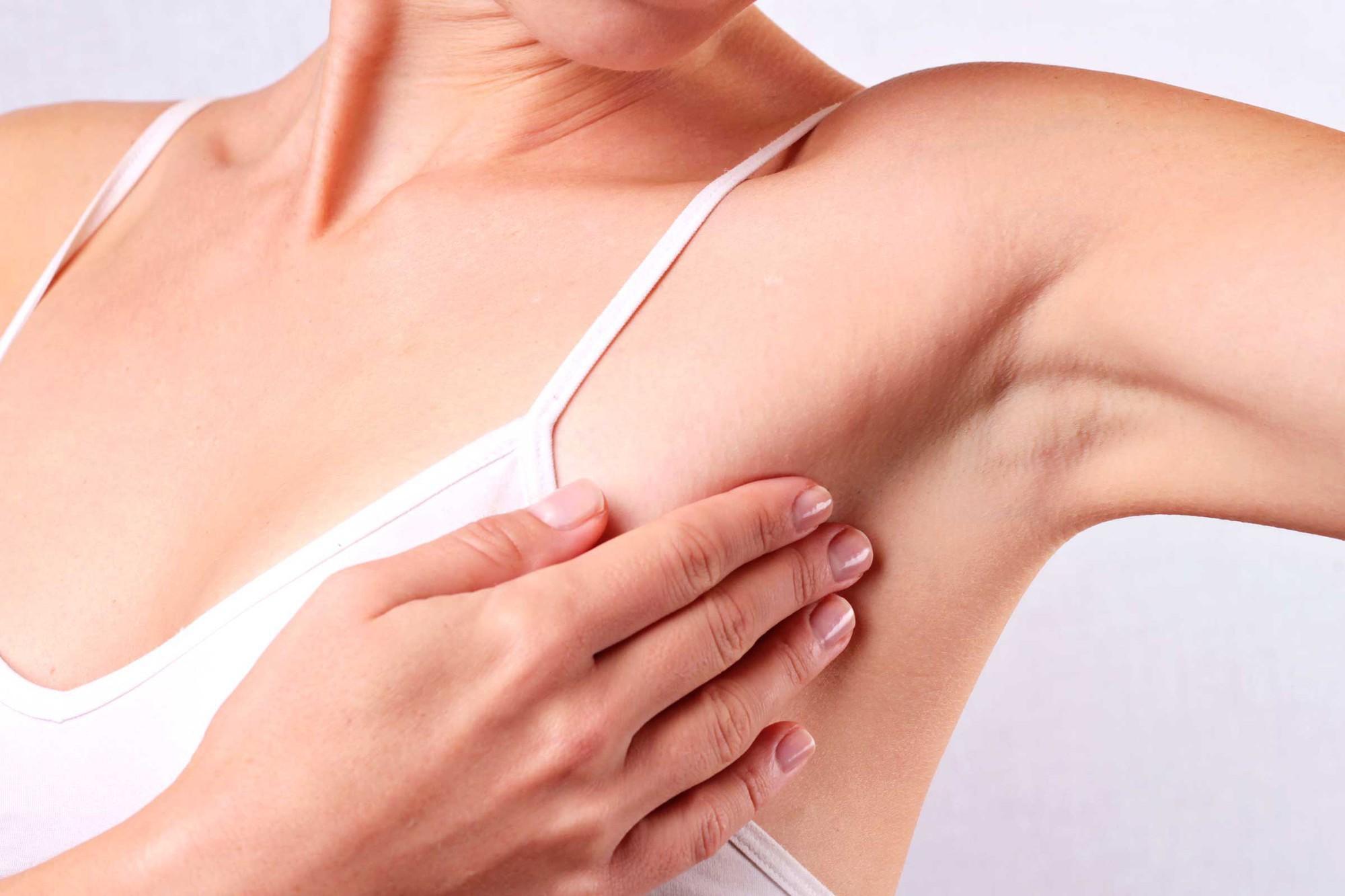 Tại sao người mẹ bị ung thư vú giai đoạn cuối phải mổ đẻ ở tư thế ngồi? - Ảnh 3.