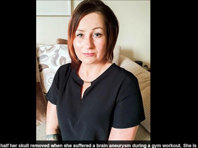 Bác sĩ phải tháo một mảnh hộp sọ để cứu người phụ nữ đột quỵ - Ảnh 1.