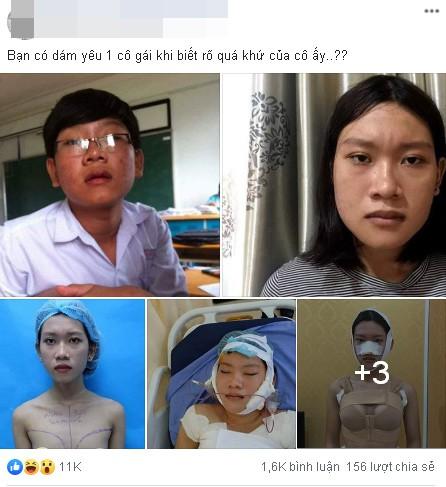 Công khai ảnh phẫu thuật chuyển giới, 9X Sài Gòn khiến người xem bất ngờ với màn lột xác xuất sắc - Ảnh 1.