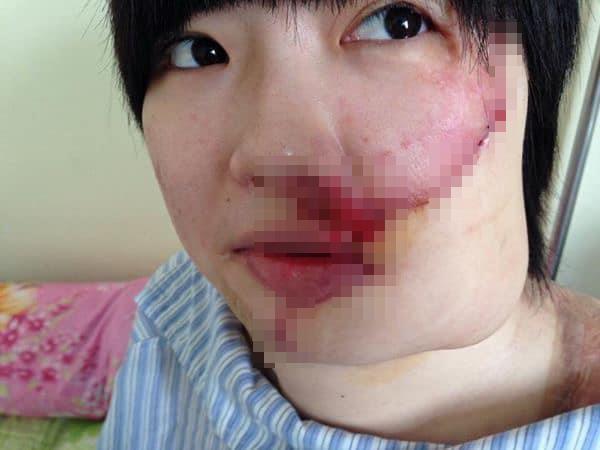 Cô gái xinh đẹp bị tạt axit và 20 lần phẫu thuật lấy lại diện mạo - Ảnh 1.