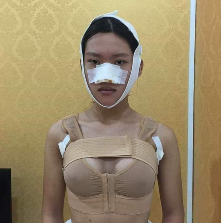 Công khai ảnh phẫu thuật chuyển giới, 9X Sài Gòn khiến người xem bất ngờ với màn lột xác xuất sắc - Ảnh 6.