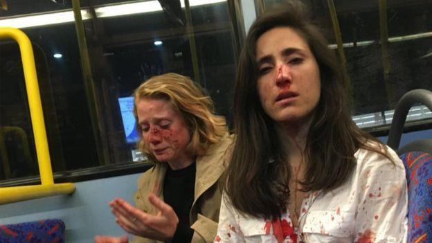 Cặp đôi đồng tính bị tấn công trên xe buýt vì không chịu hôn nhau - Ảnh 1.